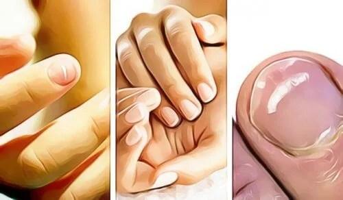 5 sinais emitidos pelas unhas das mãos de que há algo errado com a saúde