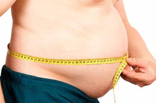 Pessoa com sobrepeso que deve se submeter a um bypass gástrico