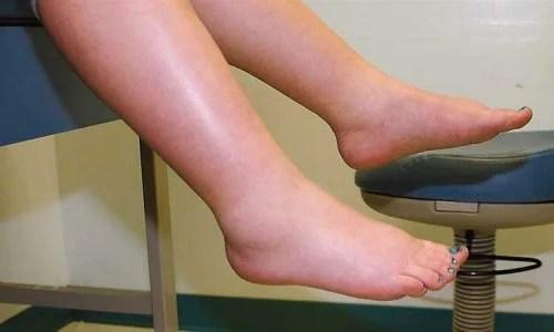 O inchaço nas pernas pode indicar que você está retendo líquidos