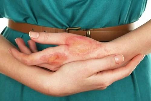 Mão com queimadura
