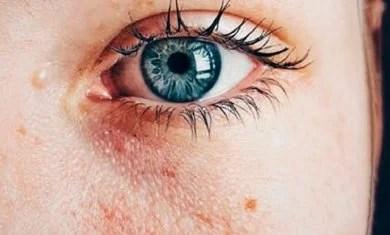 pele-danificada-1 Saiba por que você deveria lavar o rosto com quinoa