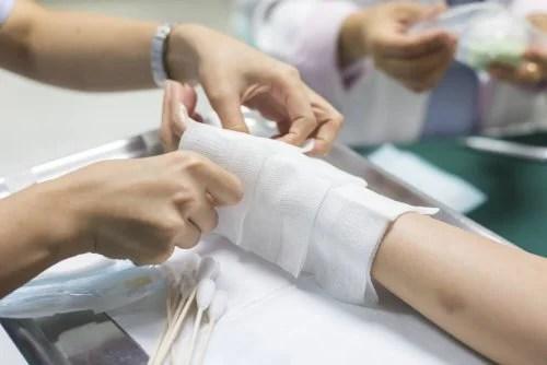 Enfermeira fazendo curativo sobre queimaduras