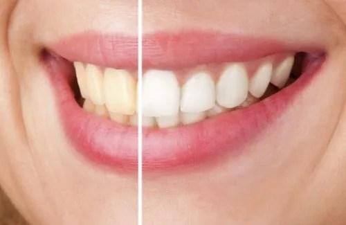 Cuide dos dentes com produtos 100% naturais