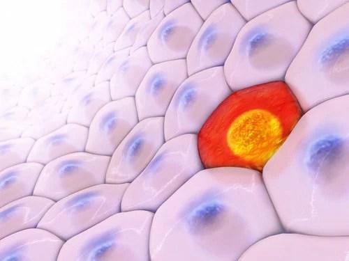 Células de câncer
