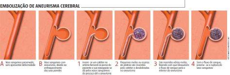Processo de embolização de um aneurisma