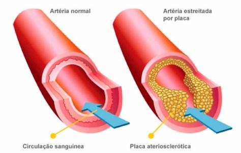 Placas de aterosclerose