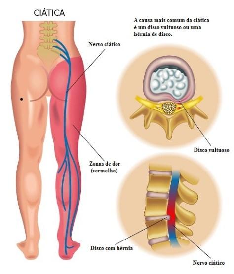 Causas da dor ciática