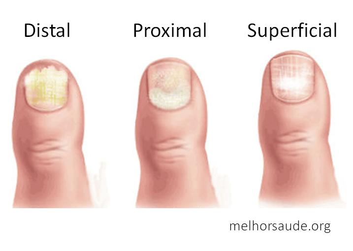 Pequenas manchas brancas no corrimento vaginal