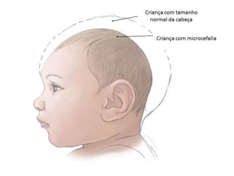 Microcefalia melhorsaude.org melhor blog de saude