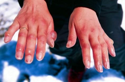Mãos com frieiras graves melhorsaude.org melhor blog de saude