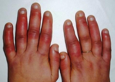 Mãos com frieiras melhorsaude.org melhor blog de saude