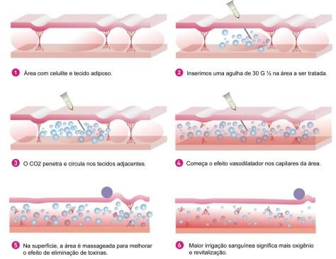 carboxiterapia-celulite melhorsaude.org melhor blog de saude