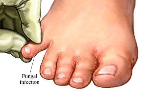 Pé de atleta fungo no pé melhorsaude.org