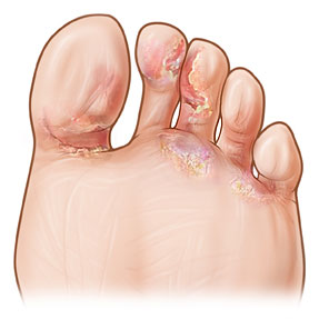 fungal-infections-of-the-feet