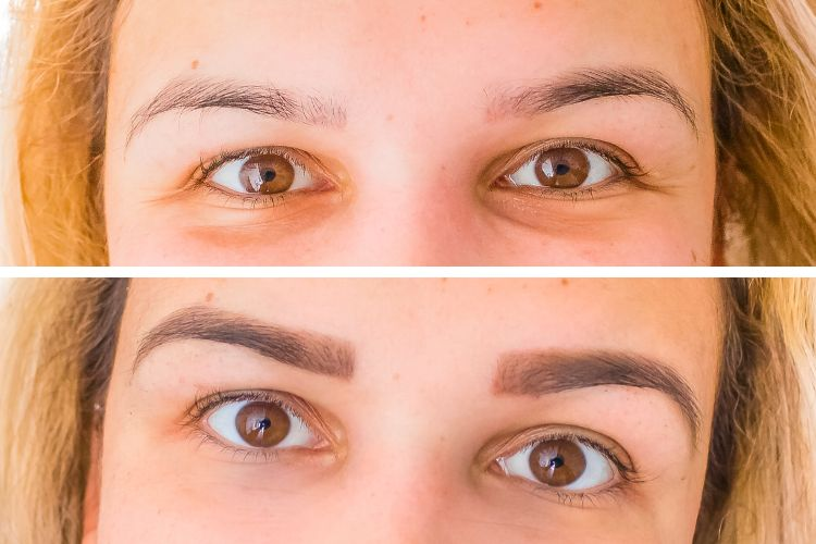 before and after brow tattoo dark brown