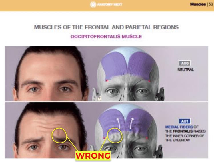 inner brow raiser wrong