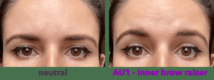 AU1 - levantamiento de cejas interno