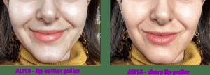 AU12 vs. AU13 - différences entre le levator anguli oris et le zygomaticus major