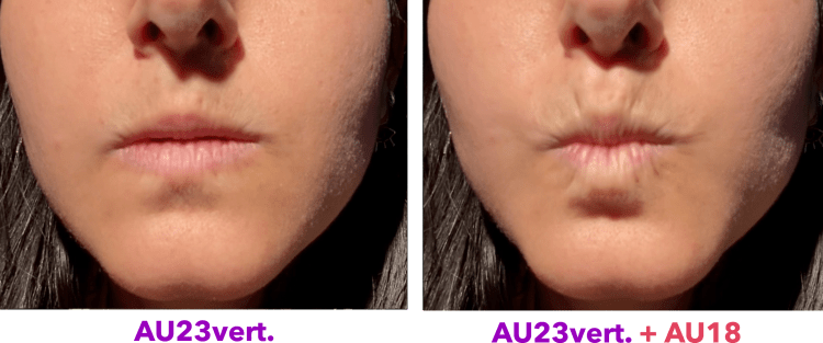vertical lip tightener + lip pucker