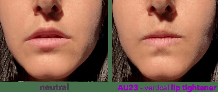 AU23 - vertical lip tightener - orbicularis oris