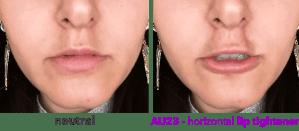 AU23 - horizontal lip tightener - horizontal type