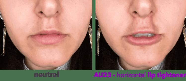 AU23 - vertical lip tightener - horizontal type