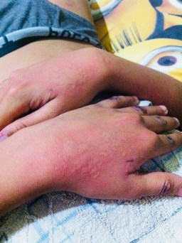 little boy with hives