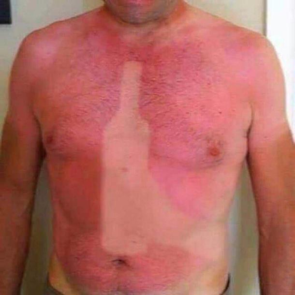 Best Sunburn Ever Meme Guy
