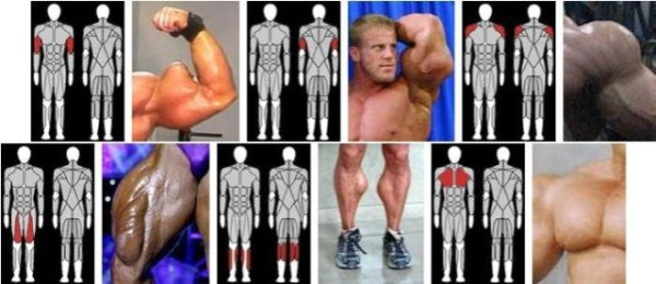 Injecting Synthol Gone Wrong (47 pictures) | Memolition