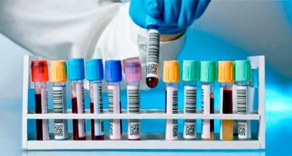 9 oțet de la varicoză