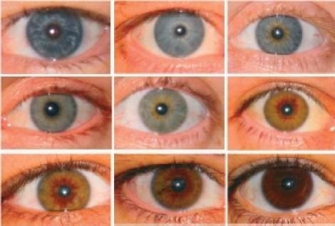Variation i øjenfarve (irispigment)