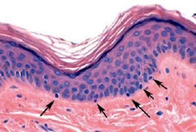 Mikroskopisk billede af overhuden (epidermis). Pilene peger på melanocytter)