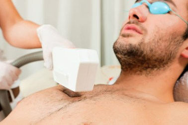 Man receiving Manscape treatment hair removal