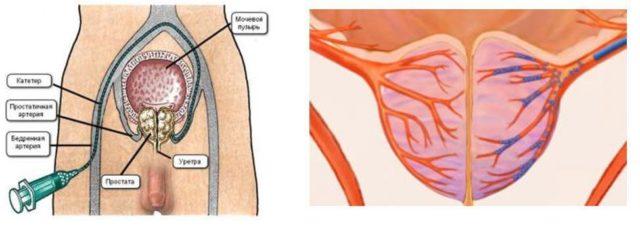 Prostate Hyperplasia Cystostomom)