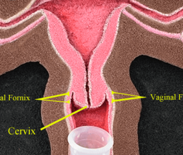 The Fornix Allows The Vagina To Stretch Elongate And Expand During Childbirth Sexual Arousal And Penetration During Sexual Arousal The Vagina Can Expand