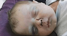 Head of baby lying on his back, with black eyes and blooding dripping from his nose