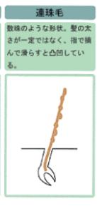連珠毛の図解