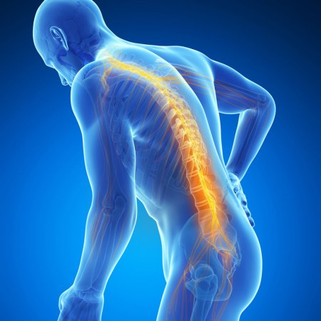 Chiropractic care can help diagnose the cause of back pain
