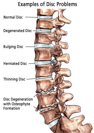 degenerative-spine