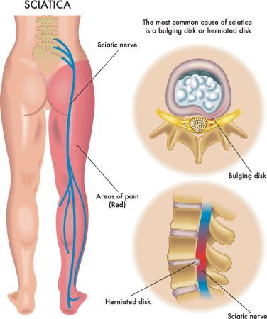 causes of sciatica