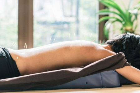 woman lying down receiving acupuncture therapy