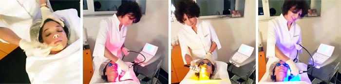 mercredie-blog-beaute-forever-laser-institut-geneve-cosmetologue-peeling-skineclipse-nadia-leonardi-portrait-interview-acne-hormonale