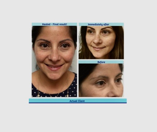 Coastal Skin Care ~ Permanent Makeup