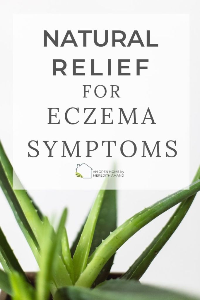 Large green aloe vera plant for Natural Relief for Eczema Symptoms - Find fast comfort from itchy eczema symptoms