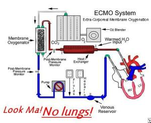 Lungsubstitute medical devices in the news, including