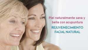 Rejuvenecimiento facial con acupuntura