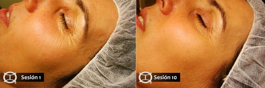 Lifting-facial-acupuntura-sesion1a10