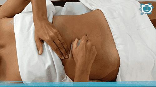 masaje con ventosa en abdomen