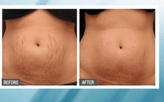 microneedling before and after abdomen stretch marks