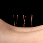 Acupuncture Seattle downtown